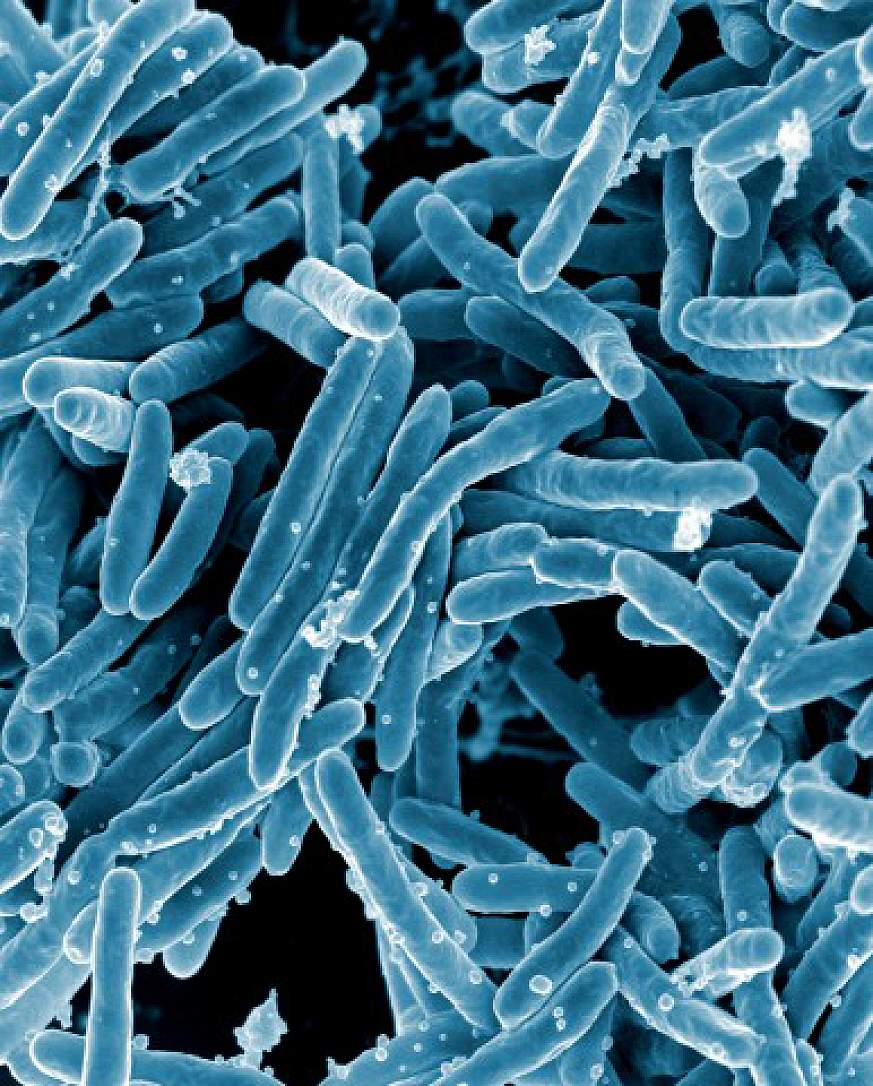Scanning electron micrograph of Mycobacterium tuberculosis bacteria, which cause tuberculosis