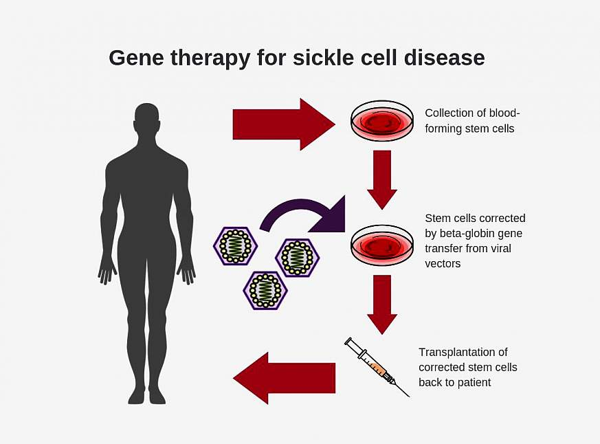 : Diagram shows steps for conducting gene therapy for sickle cell disease: Blood-forming stem cells are collected, stem cells are corrected by beta-globin gene transfer from viral vectors, and then corrected stem cells are transplanted into patient.