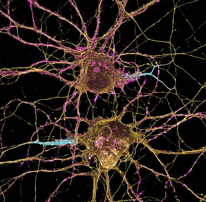 Picture of two neuron cell bodies, side by side. The axon of each neurons is colored blue.