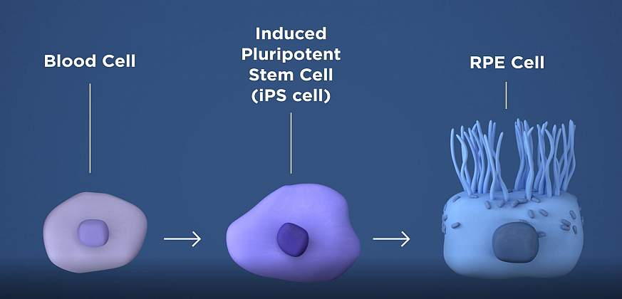 Illustration of a blood cell turning into an induced pluripotent stem cell and then an RPE cell.