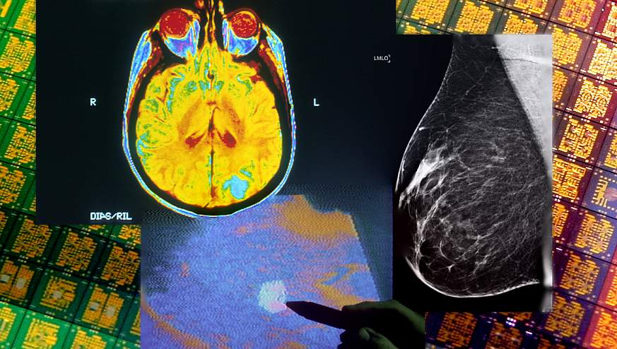Brain CT, ultrasound, and mammogram overlaid on background image of silicon chips.