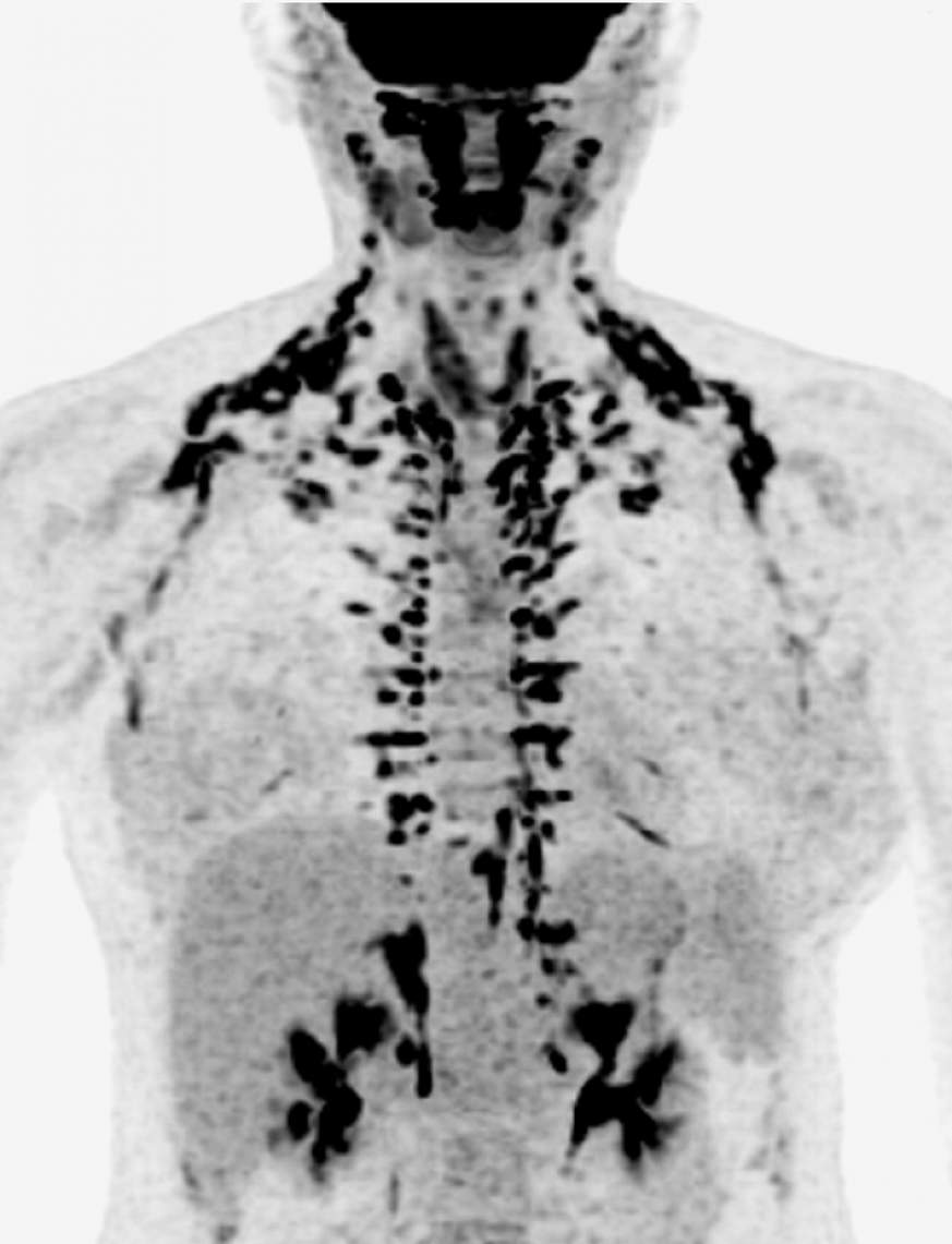 Scan showing human brown fat
