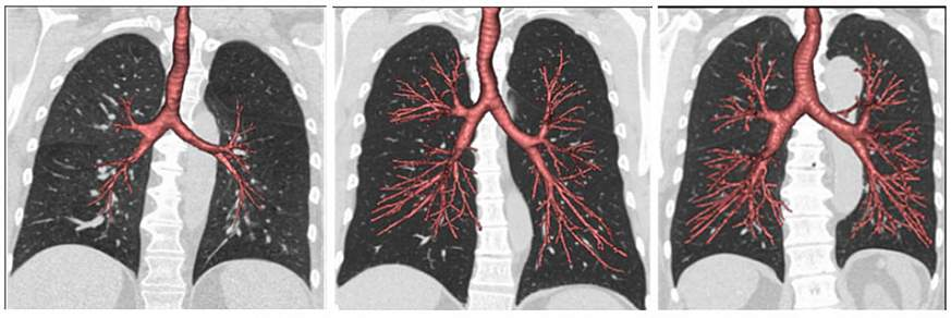 Image of CT scans of the lungs