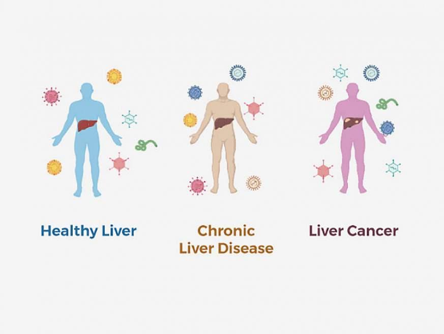 Illustration of different types of liver disesae