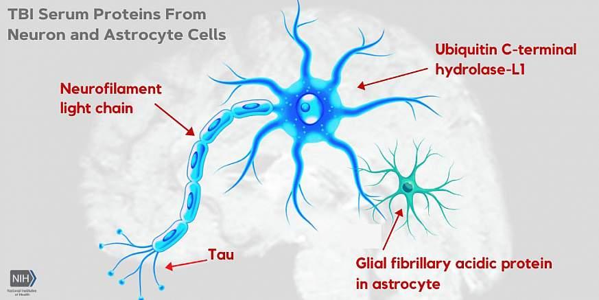 Illustration of TBI serum proteins