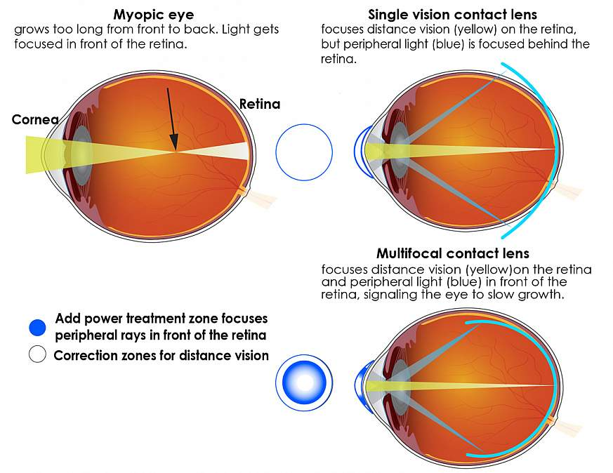 Illustration describing multifocal contact lenses