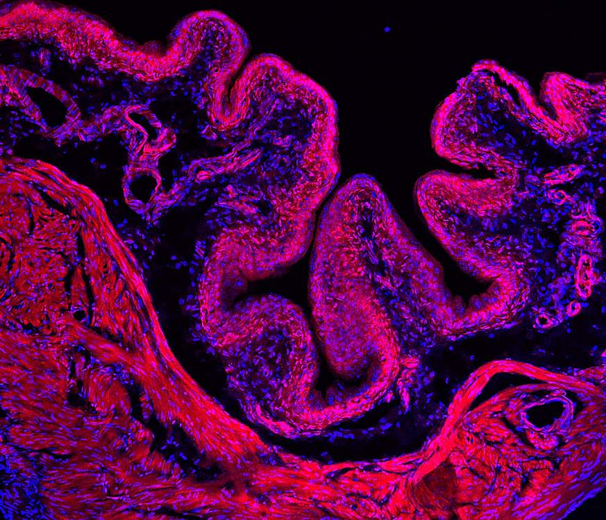 Picture of mouse bladder colored red.