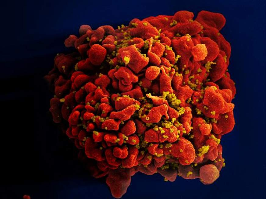 HIV-infected H9 T Cell
