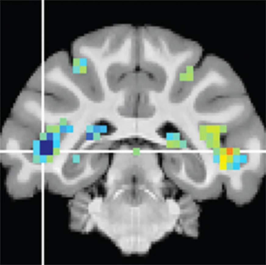 Image of fMRI scan