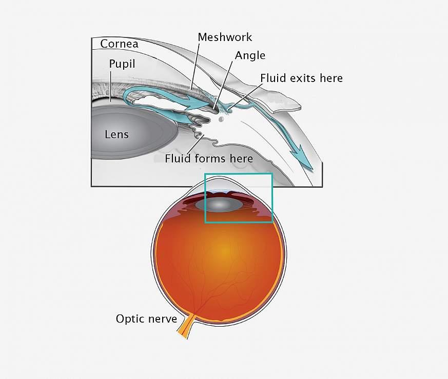 Illustration of cataract surgery