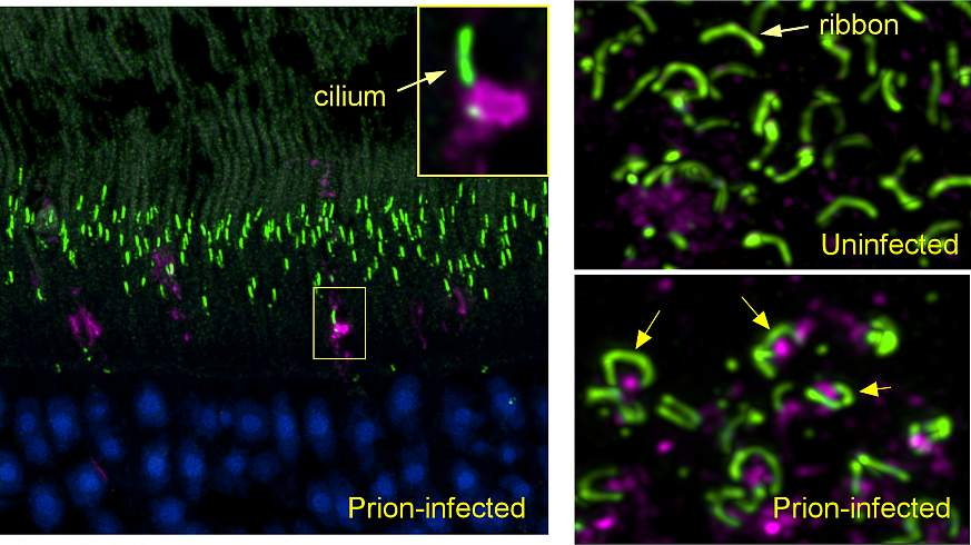 (left panel) Early in prion infection, a prion protein aggregate (magenta) blocks the entrance to a cilium (green) in a retinal photoreceptor. (lower right) In prion-infected retina, prion protein (magenta) accumulates under the horseshoe-shaped ribbon sy