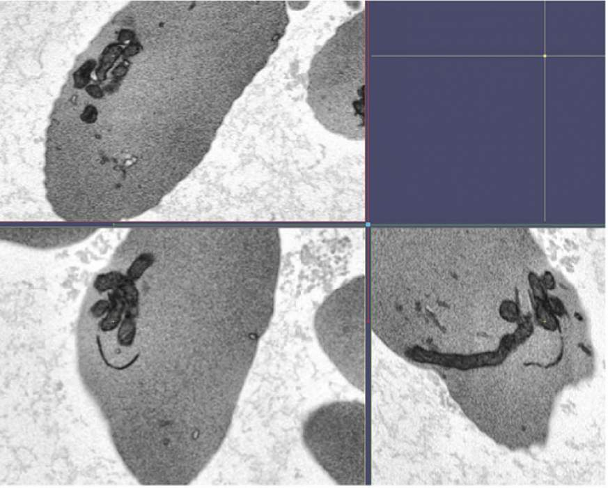Image of mitochondrial bundles in sickle cell red blood cells