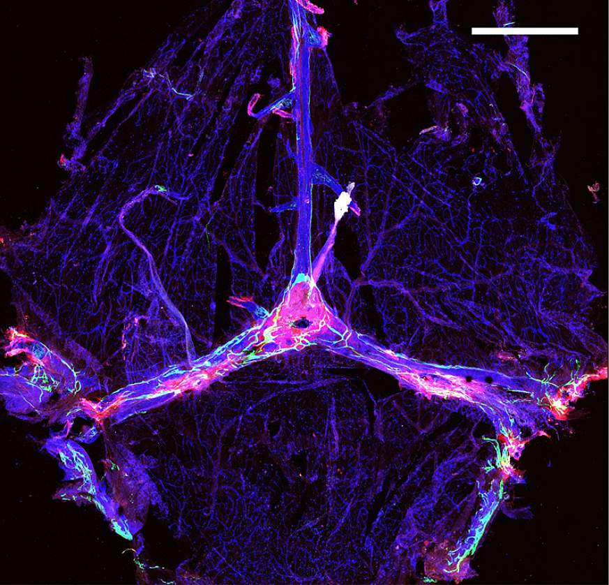 The meningeal lymphatic vessels are in green, the blood vessels are in blue and amyloid beta is in red.
