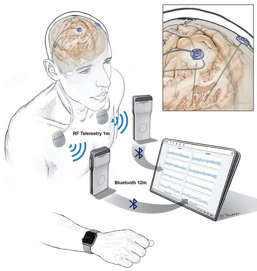 Implanted electrodes stream recorded data to a pocket-sized device worn by a patient