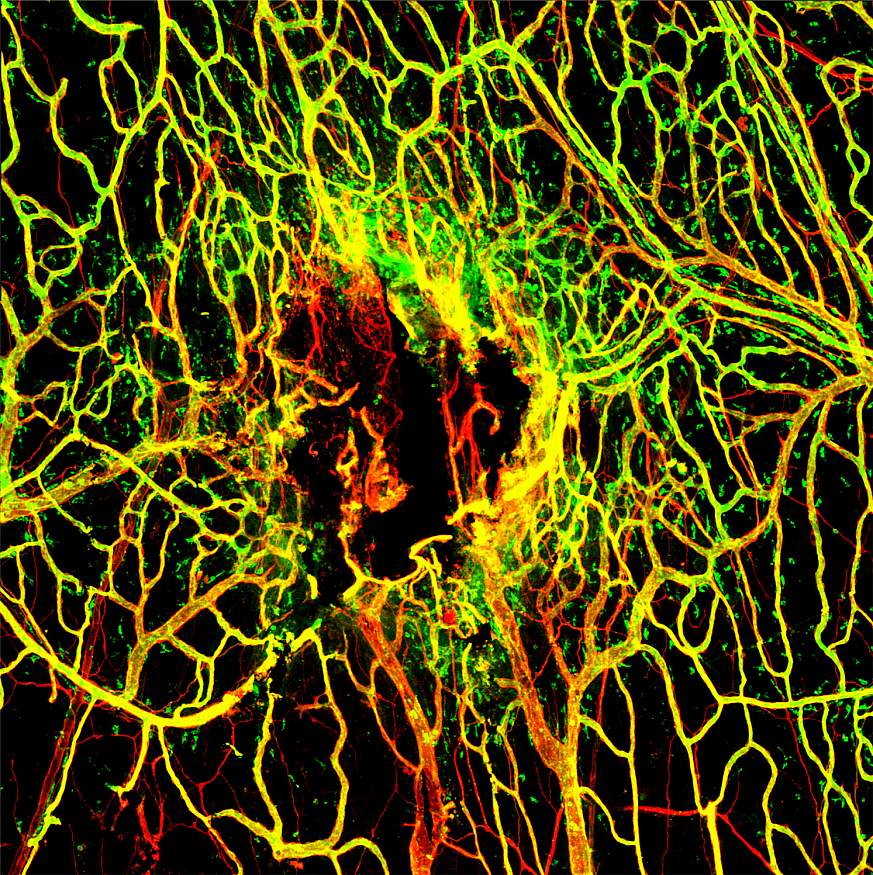 Viral Infection Slows Blood Vessel Repair After TBI: Seven days after mTBI, the blood vessels (stained in red) in the tissues around the brain are not completely repaired. A marker for intact vessels was used (labeled in green) to distinguish fully functi