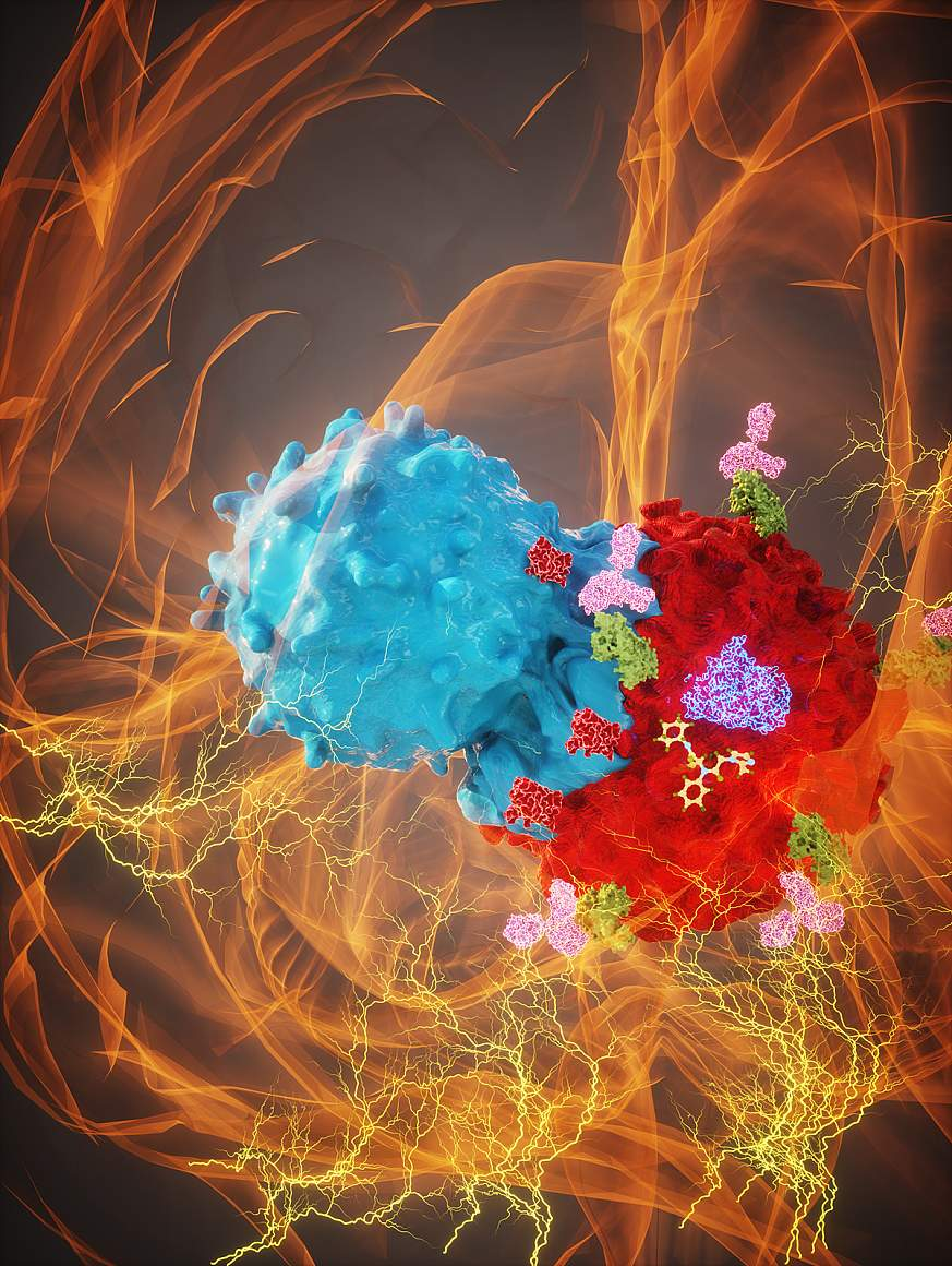 Artist's rendering of a glioma cell under attack from the immune system.