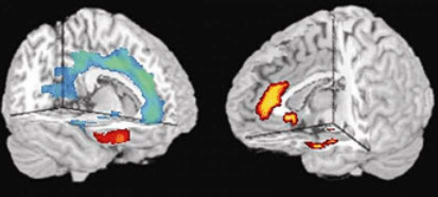 photo of MRI brain scans
