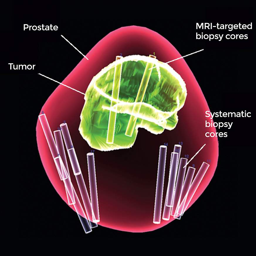 MRI-targeted biopsy cores in a tumor and 12 systematic biopsy cores elsewhere in a prostate