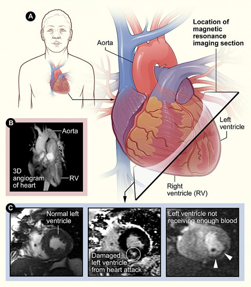 3 panel image showing different methods of viewing the heart.