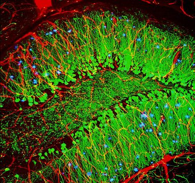 Mouse brain with hallmarks of Alzheimer's disease