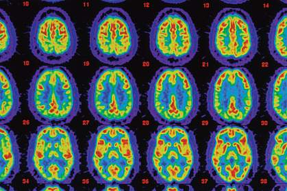 PET scans comparing an Alzheimer's brain with healthy brain.