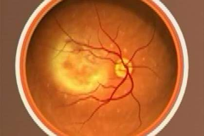 In AMD, small yellowish deposits made partly of cholesterol form under the retina, blurring the sharp central area of vision. Image courtesy of NEI.