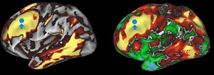 structural and functional connectivity in human brain Image