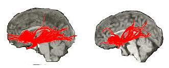Image of normal brain scan vs. Williams syndrome.