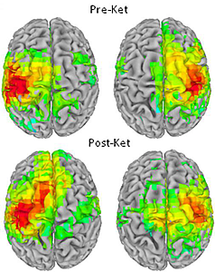 Scanned brain images with response areas highlighted