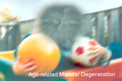 Age-related Macular Degeneration.