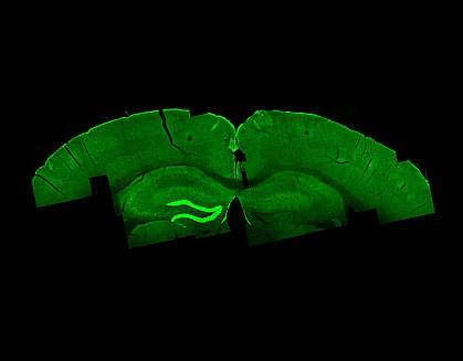 Temporal interference stimulation in mouse brain