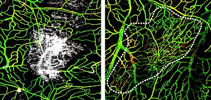 Images of brain blood vessels one and seven days after head injury