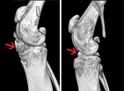 3D reconstructions of mouse knees from phase-contrast micro-CT imaging