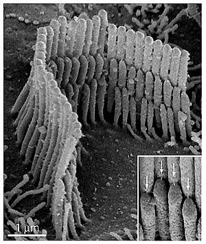 Microscopic structures called stereocilia sit atop a hair cell