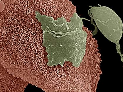 ray parasite attached to vaginal cell on left is flat, while a parasite that's not attached, on right, is pear-shaped