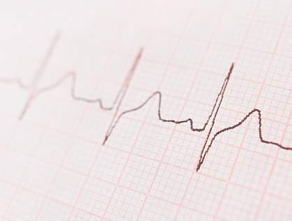 ECG graph showing the heart's rhythm