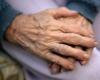 Photo of a pair of arthritic hands