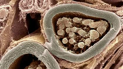 Cross-section of 2 nerve fibers with thick sheaths