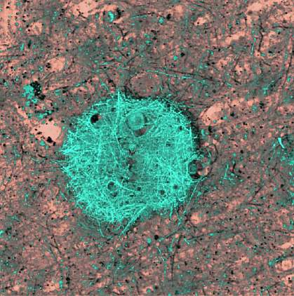 Image of a blue-green fibrous mass in the brain