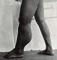 Photograph of legs, with left leg extremely swollen