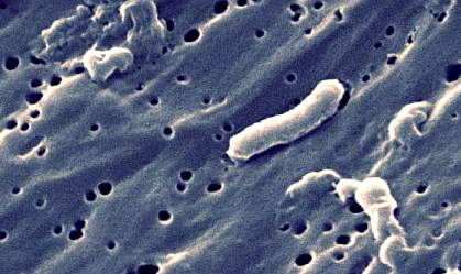 Photograph of long, tubular bacterium