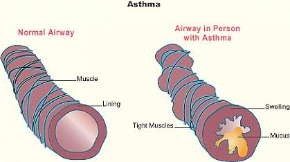 Illustration shows a normal lung tubule and an asthmatic tubule, with a central airway narrowed by tight muscles, swelling and mucus