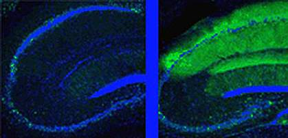 Two panels show the blunt ends of neurons outlined in glowing blue.  The left one has very little green and the right one intense green along its upper surface