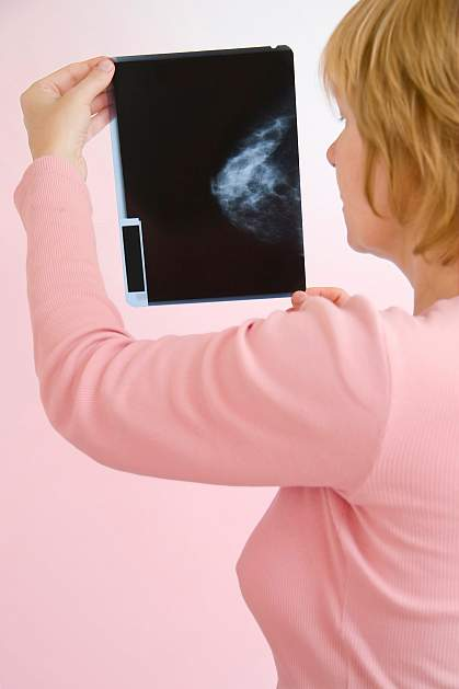 Photo of a woman looking at a mammogram X-ray
