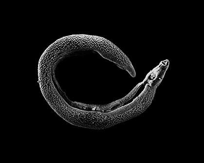 Microscopic worm curled into C shape
