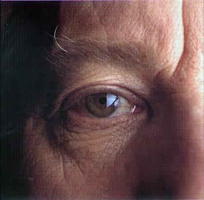 Photo of an eye.