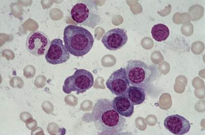 Microscope image of several globular cells stained purple