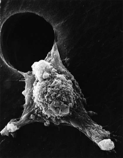 Scanning electron micrograph of cancer cell