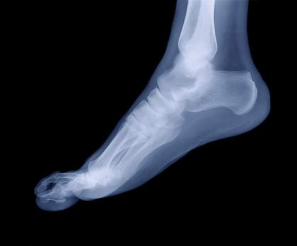 X-ray image of a human foot