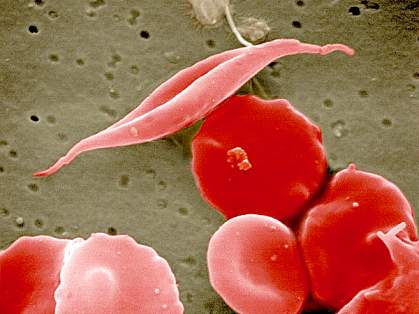 Scanning electron micrograph showing long cell at center among more disc-shaped cells